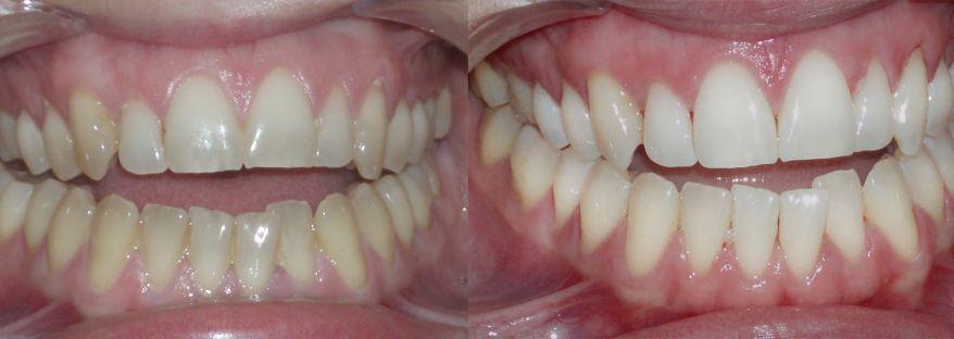 Diploma en Blanqueamiento Dental