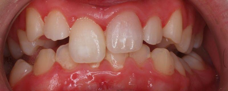 Diploma en Traumatología Dental